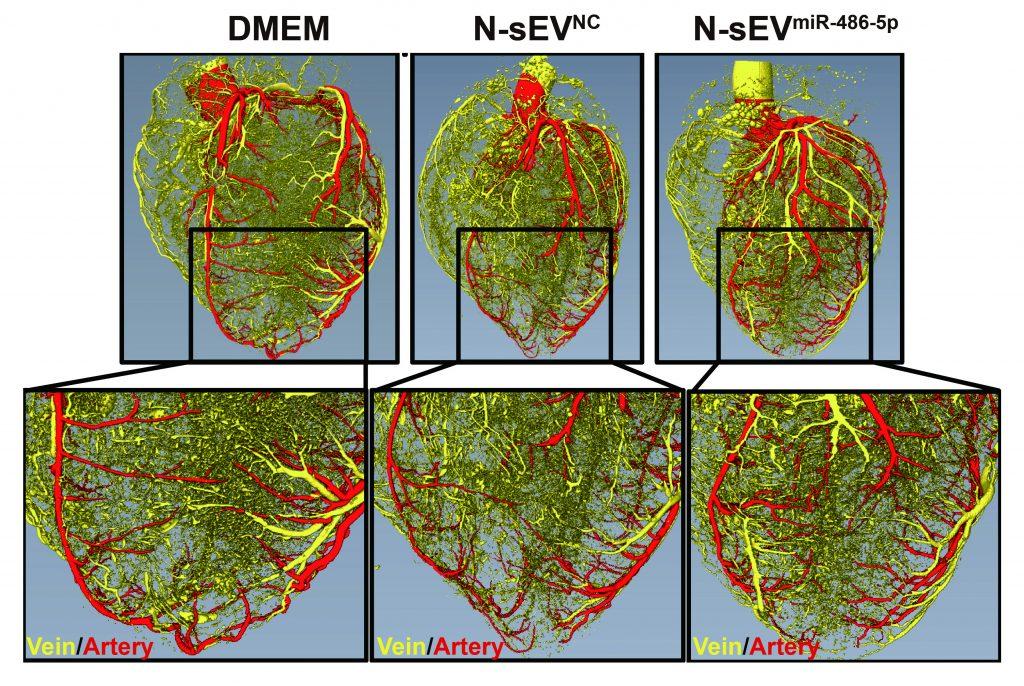 Newsletter Epigenetik: Mikro-RNA-Therapie lässt Herzkranzgefäße wieder sprießen